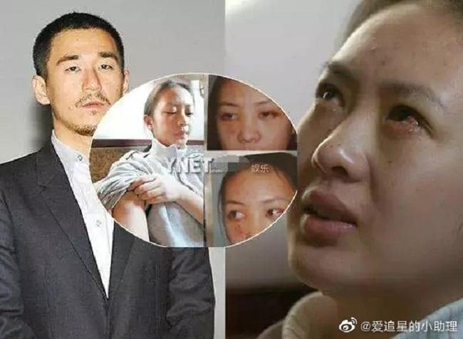 Đồng Dao từng bị Trương Mặc bạo hành dã man khiến công chúng phẫn nộ.