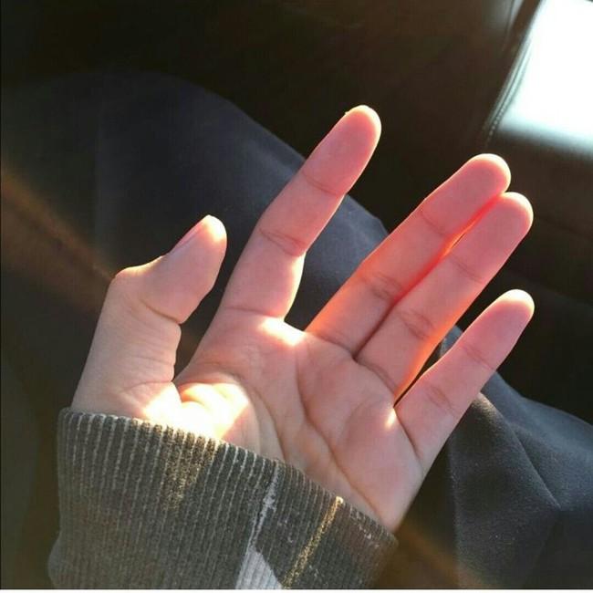 """Những người hay đau ốm, trữ mầm bệnh trong người thường xuất hiện 5 dấu hiệu """"rõ như ban ngày"""" trên bàn tay: Dù có chỉ một cũng phải đi khám ngay - Ảnh 1."""