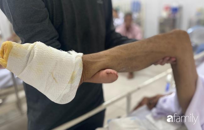 Đau xót con trai cụt tay nghỉ việc vào viện chăm sóc cha phải cắt bỏ 2 bàn chân vì bỏng điện nặng - Ảnh 8.