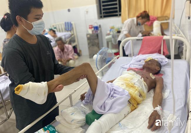 Đau xót con trai cụt tay nghỉ việc vào viện chăm sóc cha phải cắt bỏ 2 bàn chân vì bỏng điện nặng - Ảnh 1.