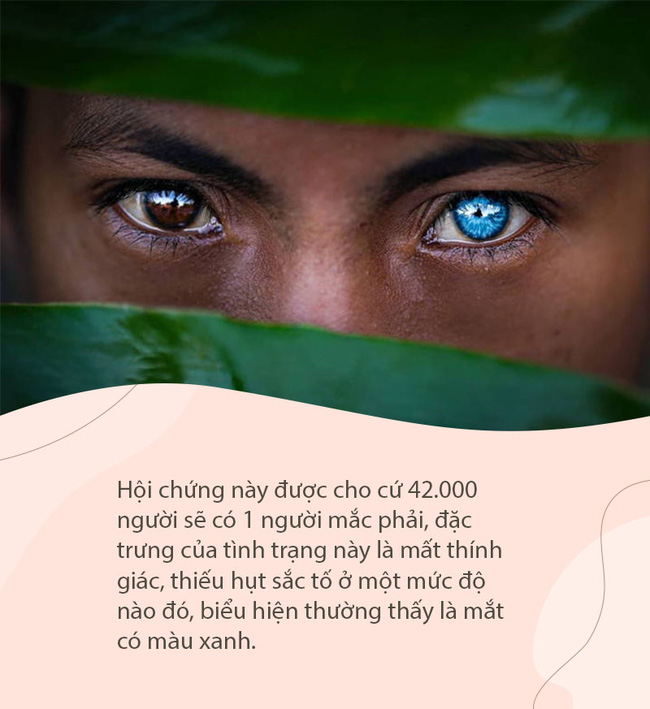 Hội chứng di truyền hiếm gặp khiến bộ tộc người Indonesia này có đôi mắt màu xanh phát sáng - Ảnh 2.