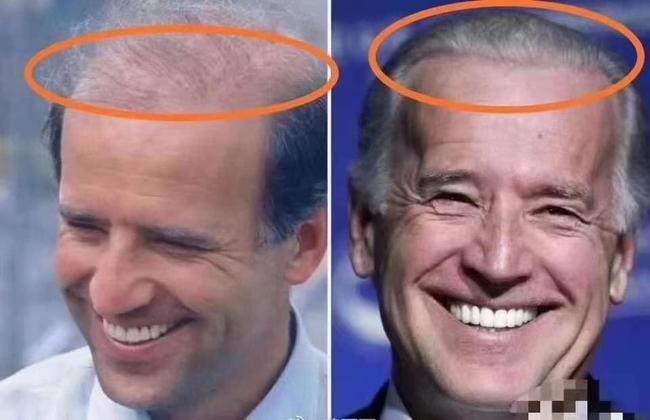 """76 tuổi vẫn phong độ lịch lãm, ông Joe Biden để lộ bằng chứng nhiều lần phẫu thuật để """"níu kéo tuổi xuân"""" từ cấy tóc, căng da đến cắt mí - Ảnh 3."""