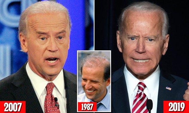 """76 tuổi vẫn phong độ lịch lãm, ông Joe Biden để lộ bằng chứng nhiều lần phẫu thuật để """"níu kéo tuổi xuân"""" từ cấy tóc, căng da đến cắt mí - Ảnh 7."""