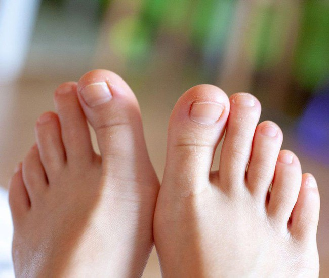 Muốn biết nội tạng có nhiễm bệnh không chỉ cần nhìn xuống bàn chân, có 3 tín hiệu thì cần phải đi khám khẩn cấp - Ảnh 3.