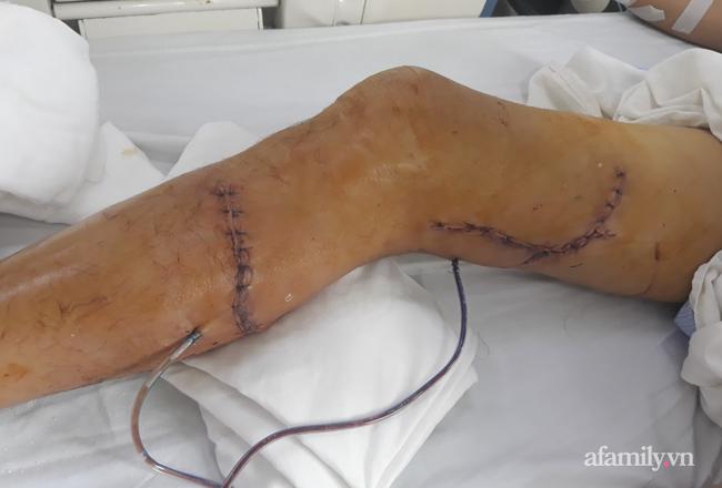 Tai nạn kinh hoàng: Người đàn ông bị máy cưa cắt thẳng vào đùi và cẳng chân phải nguy kịch, mất máu nặng nề - Ảnh 2.