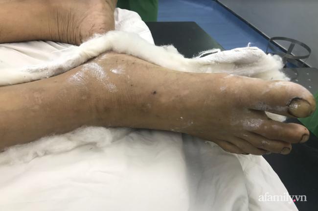 Tai nạn kinh hoàng: Người đàn ông bị máy cưa cắt thẳng vào đùi và cẳng chân phải nguy kịch, mất máu nặng nề - Ảnh 1.