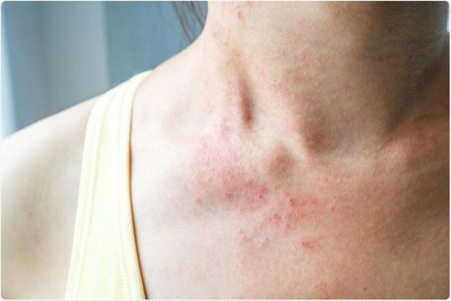 Nếu nhận thấy da có 4 màu sắc bất thường này, đừng nghĩ rằng đó là viêm da, rất có thể đó là tín hiệu của khối u ác tính hoặc ung thư - Ảnh 1.