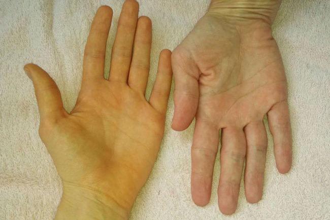 Nếu nhận thấy da có 4 màu sắc bất thường này, đừng nghĩ rằng đó là viêm da, rất có thể đó là tín hiệu của khối u ác tính hoặc ung thư - Ảnh 2.