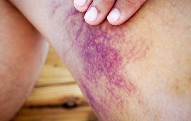 Nếu nhận thấy da có 4 màu sắc bất thường này, đừng nghĩ rằng đó là viêm da, rất có thể đó là tín hiệu của khối u ác tính hoặc ung thư - Ảnh 4.