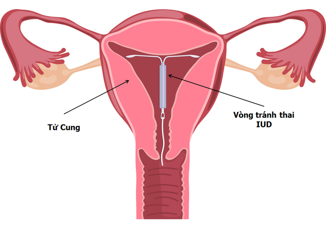 Đặt vòng tránh thai - nghe thì quen nhưng cách làm thế nào thì không phải ai cũng biết - Ảnh 1.