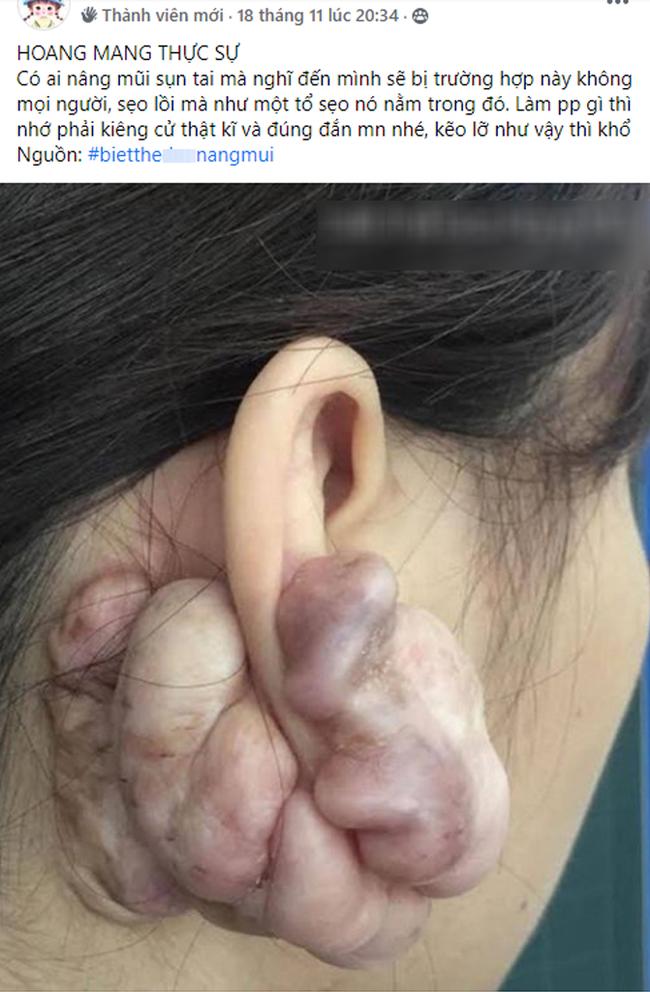 Sẹo đùn kín tai sau khi nâng mũi bằng sụn tai, nhiều chị em nhìn kinh hãi nhưng nhận định của chuyên gia mới đáng để tâm! - Ảnh 1.