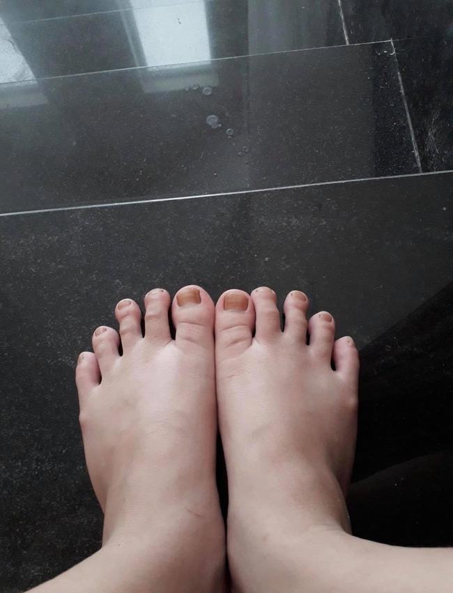 Hoa hậu Đỗ Thị Hà được xuýt xoa khen ngợi body gợi cảm nhưng nhìn xuống bàn chân lại gây sốc nhẹ - Ảnh 2.