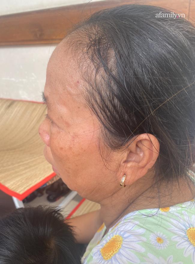 Lời kể bà ngoại bé gái 3 tuổi nguy kịch, nghi bị mẹ bạo hành: Để phân dính vào dép nên bị đánh? - Ảnh 9.