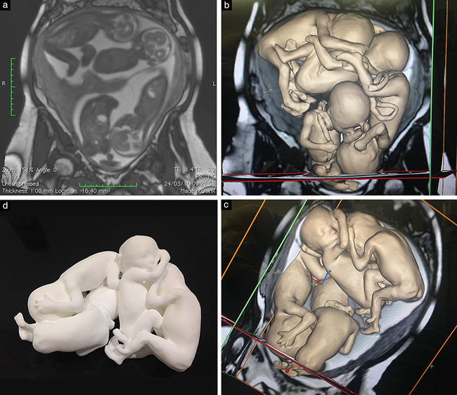 Hình ảnh mô hình vật lý 3D của thai nhi được dựng lại dựa trên kết quả siêu âm khiến nhiều người phải kinh ngạc - Ảnh 2.