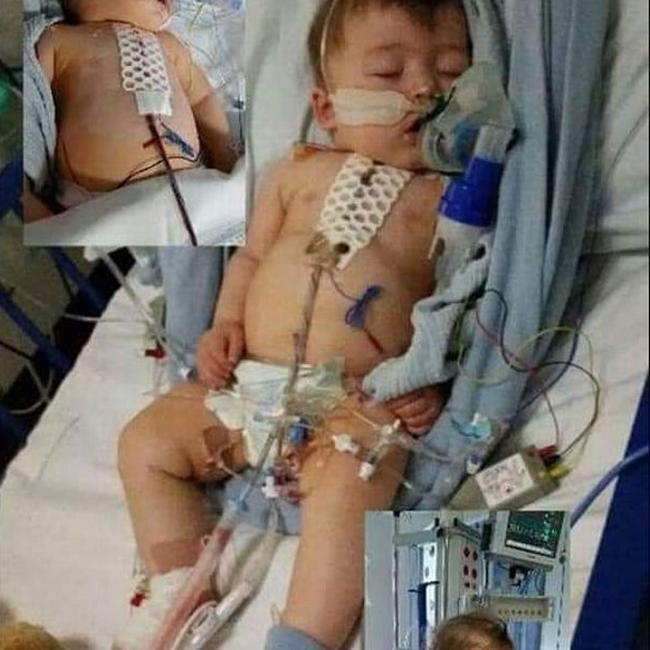 Cậu bé suýt chết 3 lần trong 2 tuần và hành trình 6 năm chống lại hội chứng rối loạn di truyền, một số dấu hiệu cha mẹ cần để ý ở con - Ảnh 2.