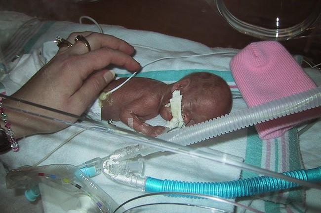 Bào thai bị chẩn đoán ngừng phát triển, bé gái chào đời nặng 0,3kg với cánh tay chui lọt chiếc nhẫn cưới và kỳ tích ngoạn mục khiến ai cũng há hốc - Ảnh 1.