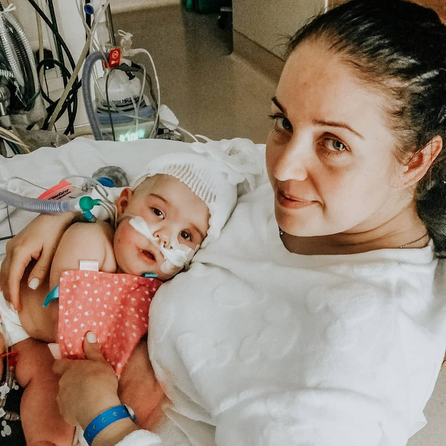 """""""Nín thở"""" nghe mẹ kể chuyện ca phẫu thuật tách rời của hai bé gái song sinh dính liền đầu - Ảnh 13."""