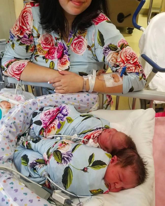 """""""Nín thở"""" nghe mẹ kể chuyện ca phẫu thuật tách rời của hai bé gái song sinh dính liền đầu - Ảnh 4."""