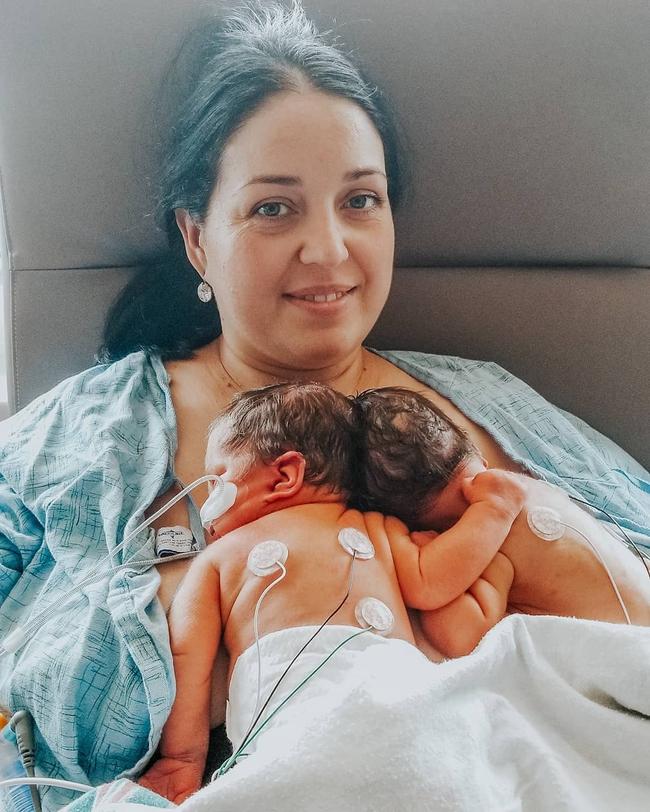 """""""Nín thở"""" nghe mẹ kể chuyện ca phẫu thuật tách rời của hai bé gái song sinh dính liền đầu - Ảnh 1."""