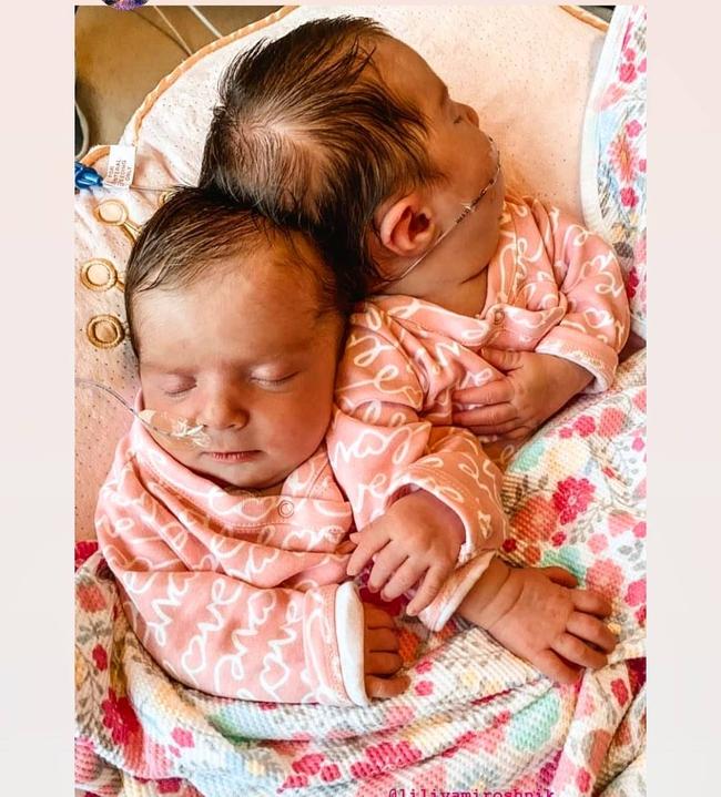 """""""Nín thở"""" nghe mẹ kể chuyện ca phẫu thuật tách rời của hai bé gái song sinh dính liền đầu - Ảnh 2."""