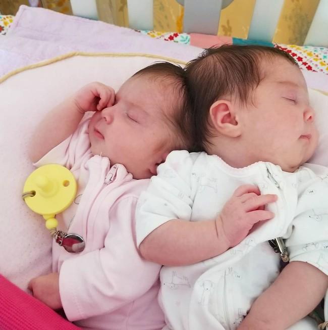 """""""Nín thở"""" nghe mẹ kể chuyện ca phẫu thuật tách rời của hai bé gái song sinh dính liền đầu - Ảnh 7."""