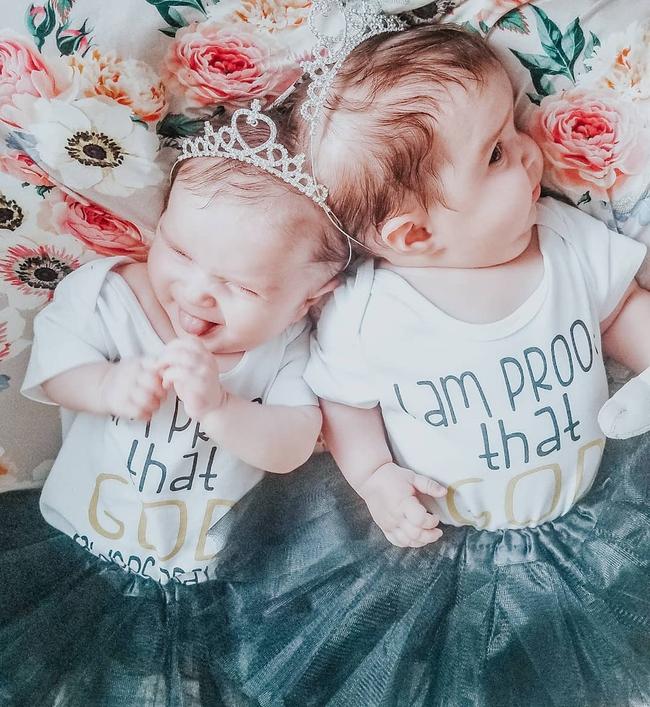 """""""Nín thở"""" nghe mẹ kể chuyện ca phẫu thuật tách rời của hai bé gái song sinh dính liền đầu - Ảnh 6."""