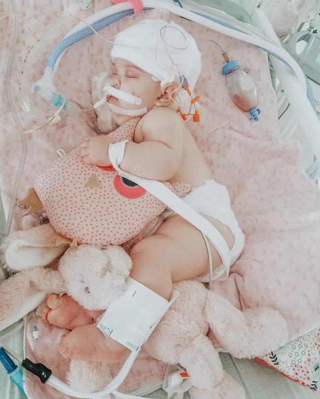 """""""Nín thở"""" nghe mẹ kể chuyện ca phẫu thuật tách rời của hai bé gái song sinh dính liền đầu - Ảnh 11."""