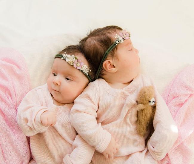 """""""Nín thở"""" nghe mẹ kể chuyện ca phẫu thuật tách rời của hai bé gái song sinh dính liền đầu - Ảnh 5."""