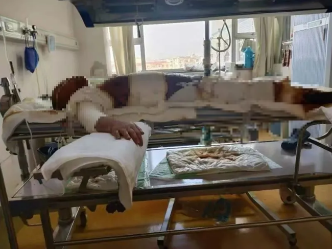 Đang ngủ thì bị chồng đánh rồi tạt xăng thiêu sống, sau gần 50 ngày người vợ vẫn đang nguy kịch dù tiêu tốn hơn 1,4 tỷ điều trị - Ảnh 3.