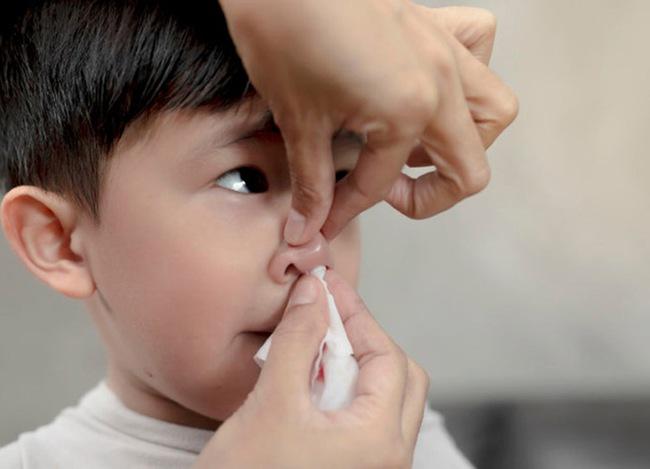 Cậu bé 2 tuổi chảy máu cam, người mẹ sai lầm trong cách sơ cứu khiến con trai tử vong ngay lập tức - Ảnh 2.