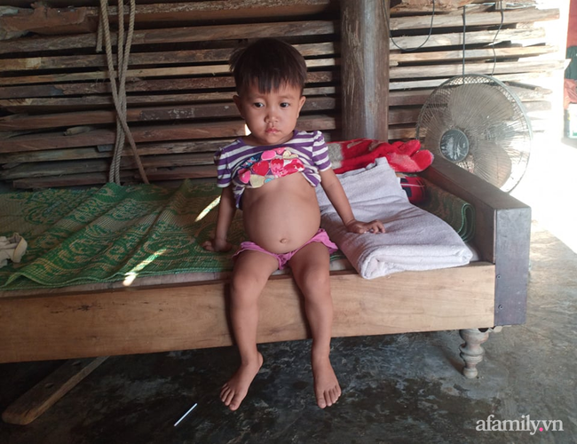 Người mẹ nghèo 3 năm liền thức trắng đêm cùng con gái 3 tuổi chiến đấu với căn bệnh hiểm nghèo - Ảnh 4.