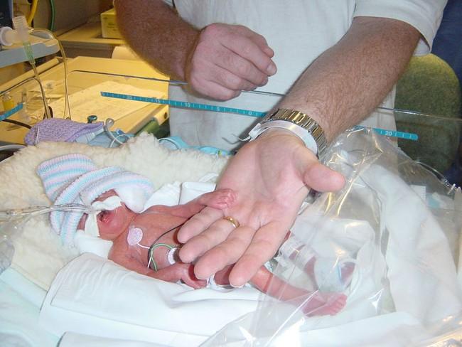 """Nhờ được chị song sinh vòng tay qua ôm trong lúc đang hấp hối, em bé đã hồi sinh trở lại và cái ôm ấy đã trở thành """"cái ôm giải cứu"""" - Ảnh 1."""