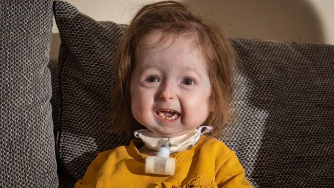 """Bé gái 2 tuổi mắc chứng bệnh """"tiến hóa ngược"""" kỳ dị chỉ nặng chưa đầy 7kg - Ảnh 1."""