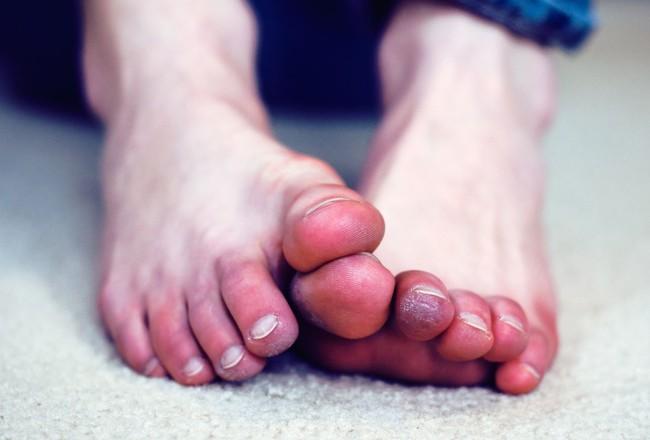 """Đừng tưởng đông về thấy chân lạnh là dĩ nhiên, đó còn là """"phát súng"""" cảnh báo cơ thể đang ủ cả đống bệnh hiểm nghèo và dễ đột quỵ bất ngờ - Ảnh 1."""