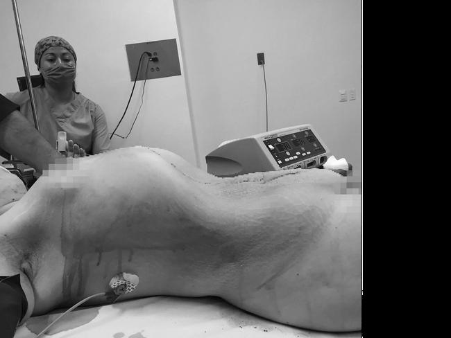 Vác bụng to khủng khiếp tưởng như mang cùng lúc 10 bào thai đến bệnh viện, cô gái khiến bác sĩ ngỡ ngàng đến choáng váng khi lấy ra thứ này - Ảnh 5.