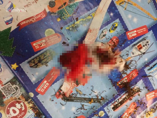 Con trai đi vệ sinh xong tay đầm đìa máu, mẹ Hà Nội tá hỏa bế đi viện gấp, nguyên nhân hóa ra do vật dụng nhà nào cũng có  - Ảnh 1.
