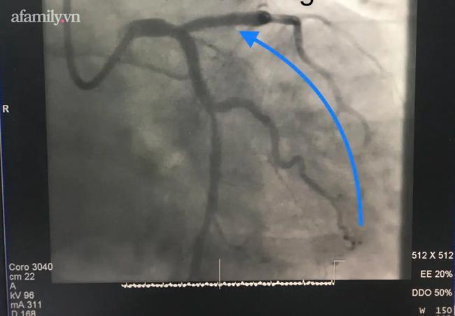 2 ngày, một bệnh viện cứu 10 bệnh nhân bị nhồi máu cơ tim cấp nguy kịch: Bác sĩ tiết lộ nguyên nhân - Ảnh 1.
