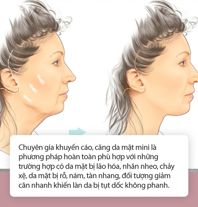Căng da mặt mini - Cứu tinh cho chị em có làn da mới bị lão hóa, nhất là trường hợp giảm cân nhanh, đột ngột - Ảnh 3.