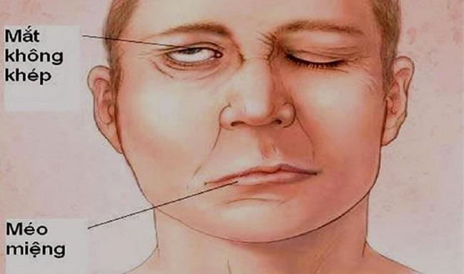 Người đàn ông bị méo miệng, mắt không khép kín được sau khi tắm và không giữ đủ ấm, cảnh báo căn bệnh nguy hiểm mùa lạnh - Ảnh 1.