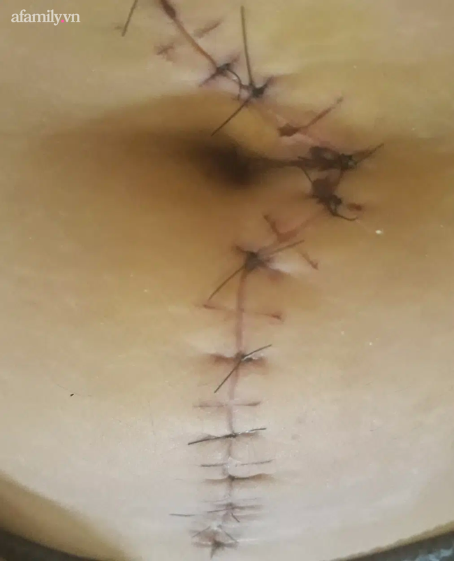 Sử dụng Testosterone liên tục để chuyển giới, cô gái Bình Dương mang khối u nặng 2.7 kg to như quả dưa hấu - Ảnh 2.