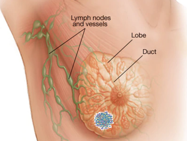 Đắp lá thuốc trị ung thư vú di căn, người phụ nữ 36 tuổi gánh hậu vì khối u phình to và chảy dịch nặng nề - Ảnh 1.