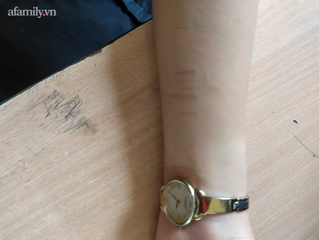 Cảnh báo: Xôn xao học sinh trung học tự rạch tay chân, nghi học theo video trên Youtube - Ảnh 2.