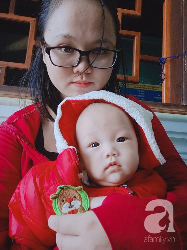 Chủ quan không kiêng cữ sau sinh, mẹ trẻ bị liệt dây thần kinh số 7 - Ảnh 3.