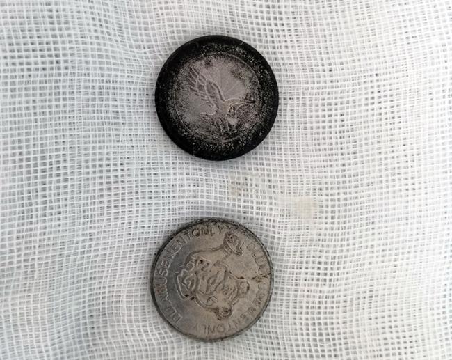 Lấy 2 đồng xu ra khỏi dạ dày cho bé trai 7 tuổi - Ảnh 1.