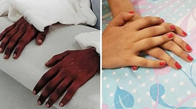 """Điều kỳ diệu của y học: Cô gái trẻ được ghép bàn tay của một nam thanh niên da đen, 2 năm sau bác sĩ kinh ngạc khi thấy nó """"chuyển màu"""" - Ảnh 1."""