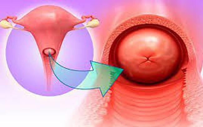 Vùng kín của phụ nữ có mùi bất thường, cảnh giác mắc 3 loại bệnh phụ khoa - Ảnh 3.
