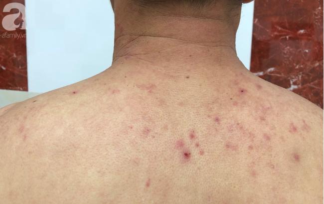 Cảnh báo: Người đàn ông bị nổi mụn nước, rộp rát da sau khi tắm biển về vì căn bệnh chưa có thuốc trị dứt - Ảnh 2.