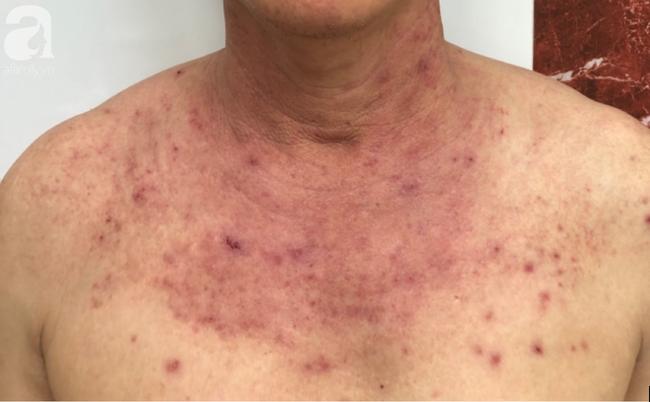 Cảnh báo: Người đàn ông bị nổi mụn nước, rộp rát da sau khi tắm biển về vì căn bệnh chưa có thuốc trị dứt - Ảnh 1.