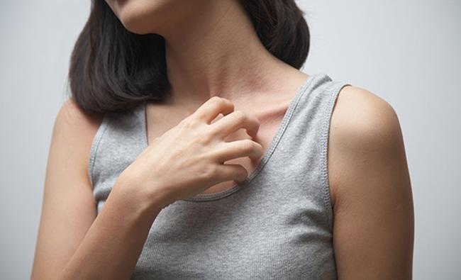 Ngứa da là dấu hiệu cơ quan nội tạng đang có vấn đề, chẩn đoán sớm sẽ giúp bạn tránh mắc được những căn bệnh nguy hiểm này - Ảnh 1.