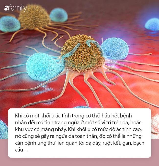 Ngứa da là dấu hiệu cơ quan nội tạng đang có vấn đề, chẩn đoán sớm sẽ giúp bạn tránh mắc được những căn bệnh nguy hiểm này - Ảnh 4.